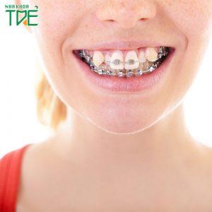Niềng răng có giữ được răng khểnh không?