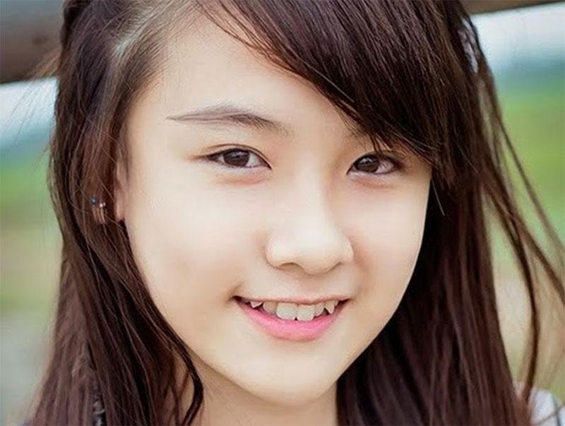 Răng khểnh mang đến nụ cười duyên theo quan điểm của Á Đông