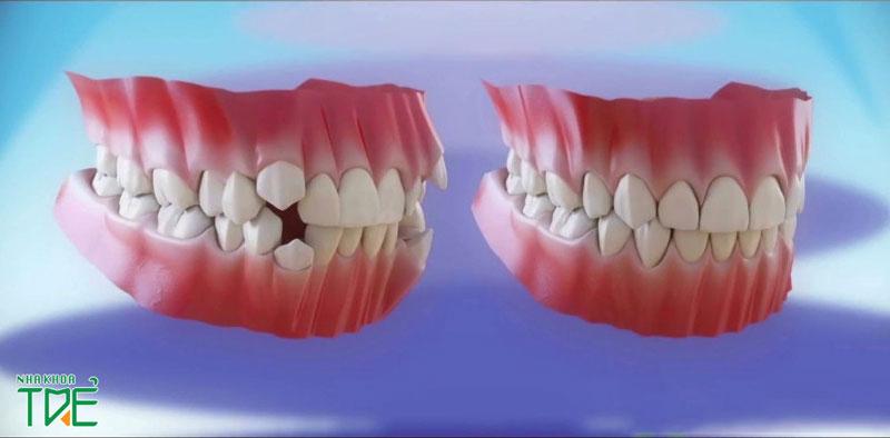 Niềng răng khểnh giúp hàm răng đều đẹp, bảo vệ sức khỏe răng miệng