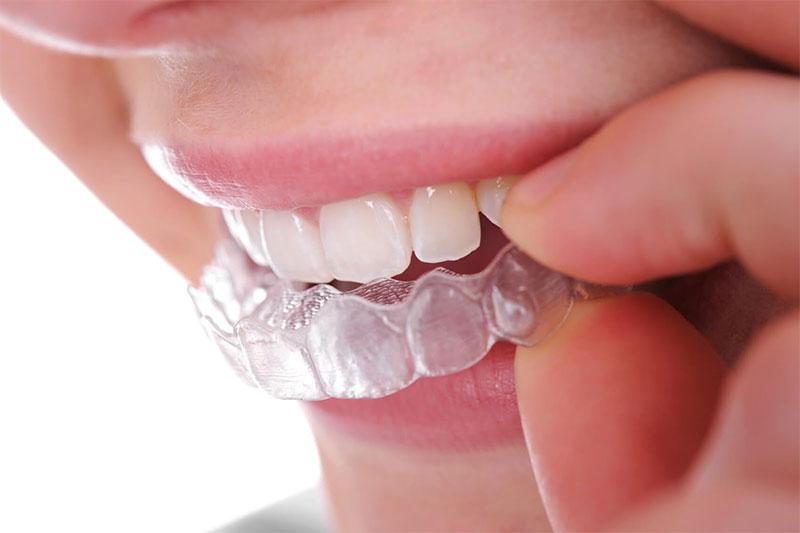 Niềng răng trong suốt Invisalign cho kết quả nhanh chóng