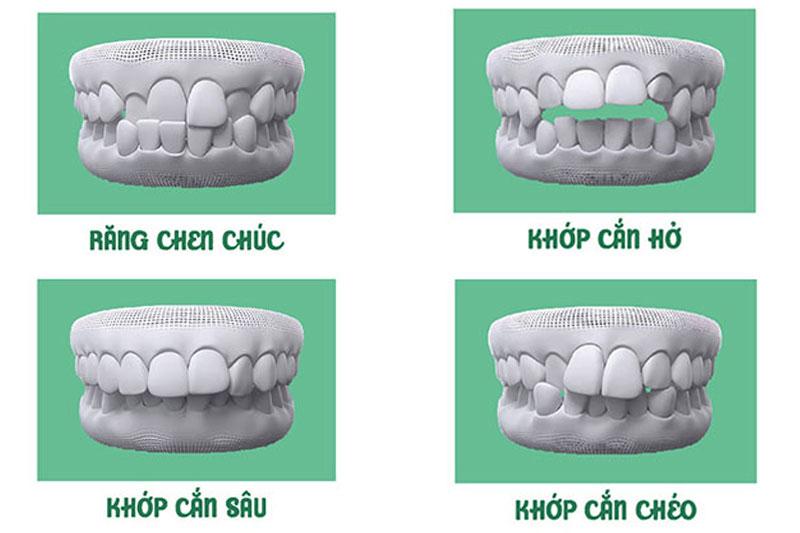Những câu hỏi và giải đáp về cắm mini vít niềng răng bạn cần biết