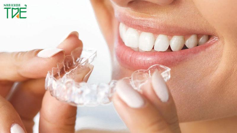 Niềng răng không mắc cài có hiệu quả không?