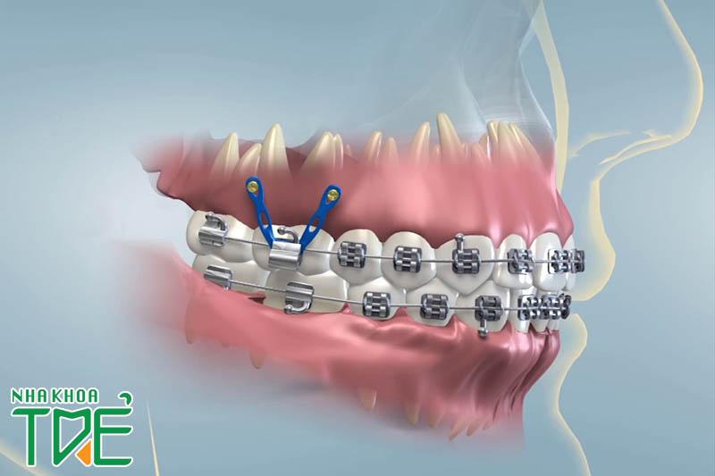 Niềng răng làm răng yếu không?