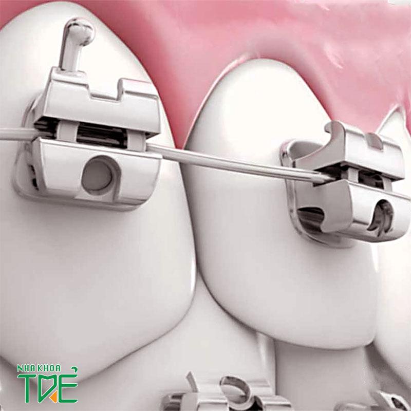 Niềng răng mắc cài kim loại tự buộc giúp chỉnh nha nhanh chóng, hiệu quả