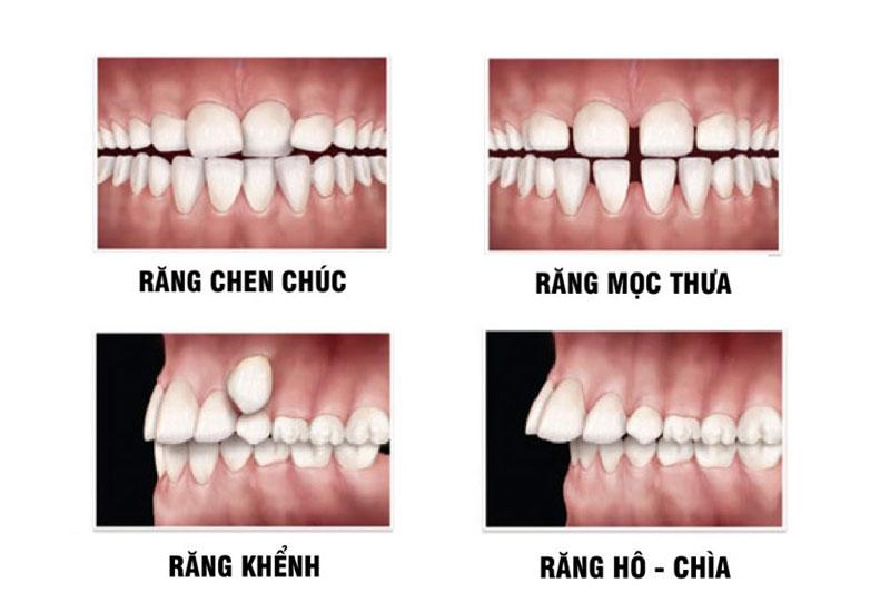 Các trường hợp niềng răng mắc cài tự buộc hiệu quả nhanh chóng