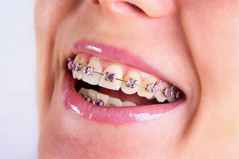 Niềng răng mắc cài kim loại thường sử dụng dây thun nên có khả năng bị bung bật
