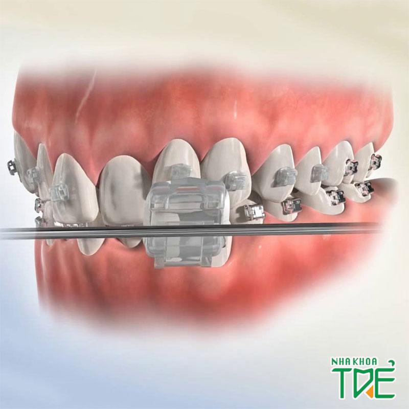 Niềng răng mắc cài sứ giá bao nhiêu là hợp lý?