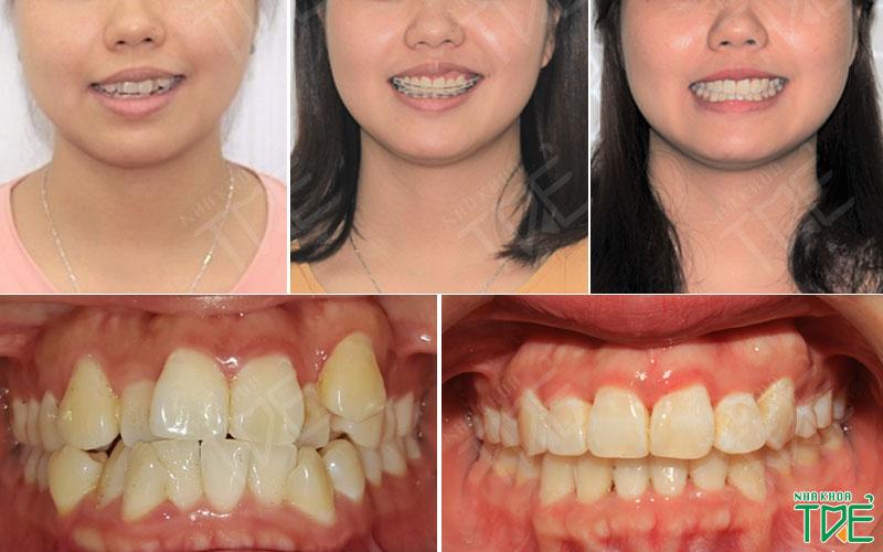 Niềng răng mắc cài sứ nắn chỉnh hàm răng lệch lạc trở nên cân đối, hài hòa