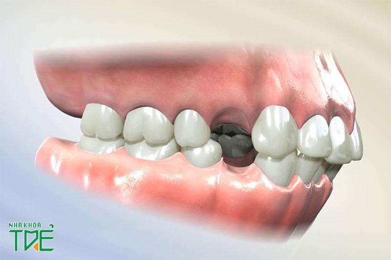Niềng răng phải nhổ răng số 4 trong trường hợp nào?