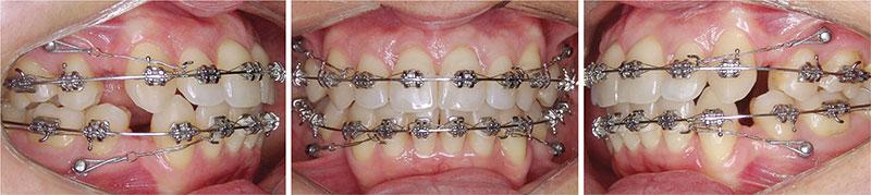 Nhổ răng số 4 để niềng răng hô đạt hiệu quả cao nhất