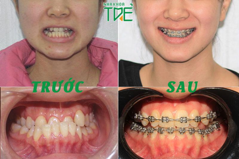 Niềng răng sai khớp cắn – Phương pháp giúp hàm răng cân đối, hài hòa