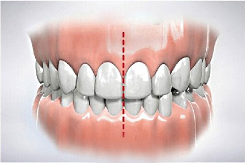 Khớp cắn chuẩn cho hai hàm răng tương xứng, cân đối nhau