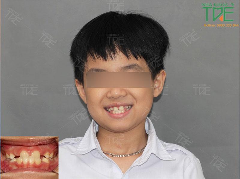 Kết quả niềng răng cho trẻ có khớp cắn ngược tại Nha khoa Trẻ (thời điểm răng hỗn hợp)
