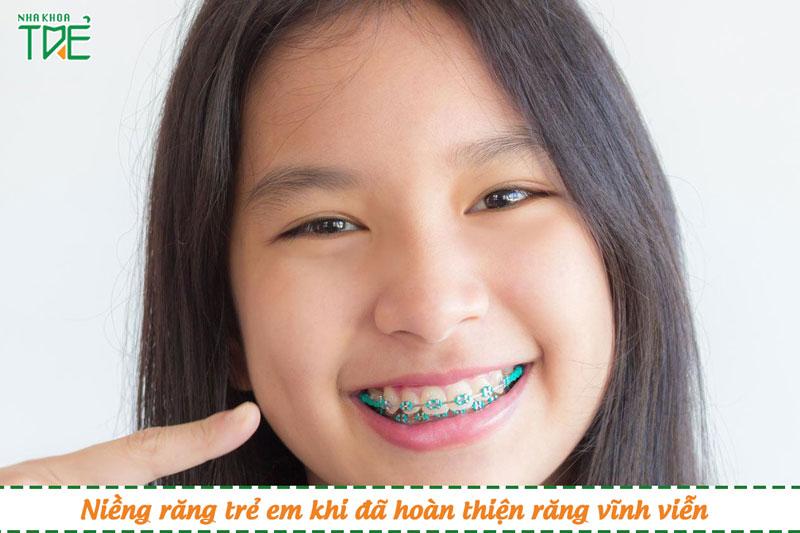 Nên niềng răng cho trẻ em để đạt hiệu quả cao nhất