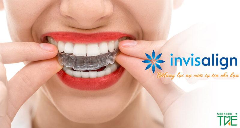 Niềng răng trong suốt có tốt không? Có hiệu quả không?