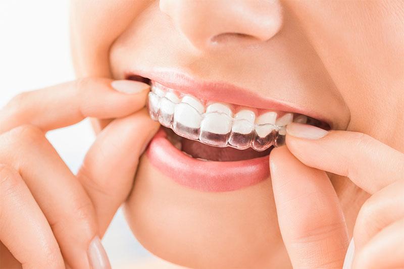 Niềng răng trong suốt mang lại hàm răng đều đẹp, nụ cười tỏa sáng