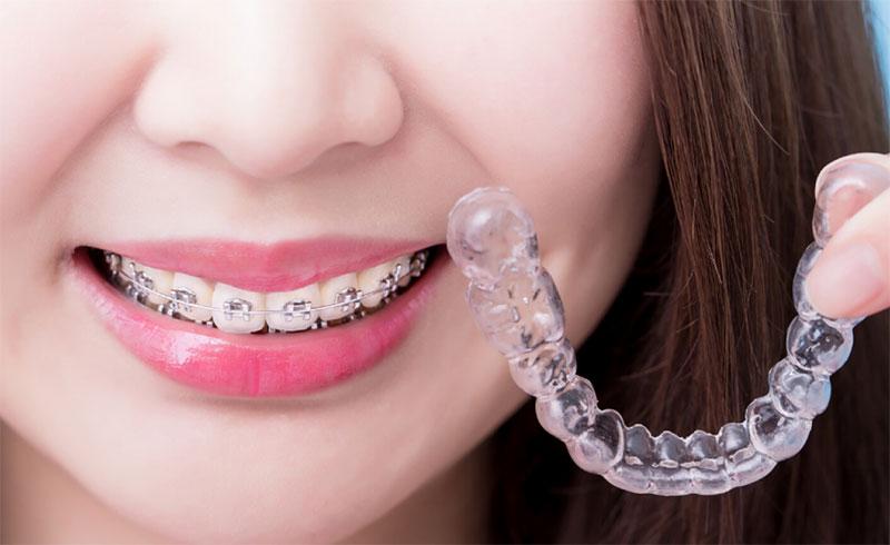 Niềng răng trong suốt Invisalign có nhiều ưu điểm vượt trội hơn niềng răng mắc cài