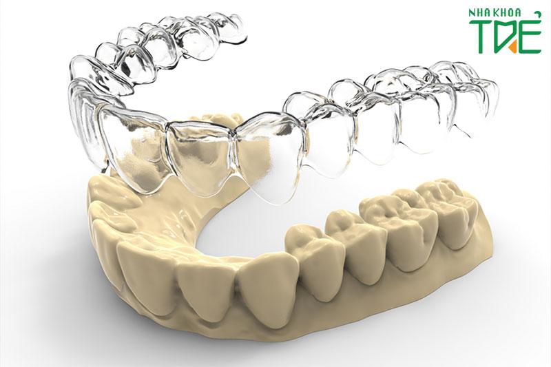 Niềng răng trong suốt có mấy loại?