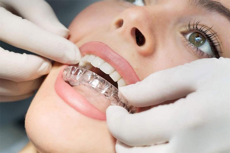 Không phải mọi trường hợp răng khiếm khuyết đều thực hiện niềng răng Aligner hiệu quả