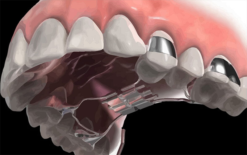 Nong hàm để làm gì? Nong hàm có thay đổi khuôn mặt không?