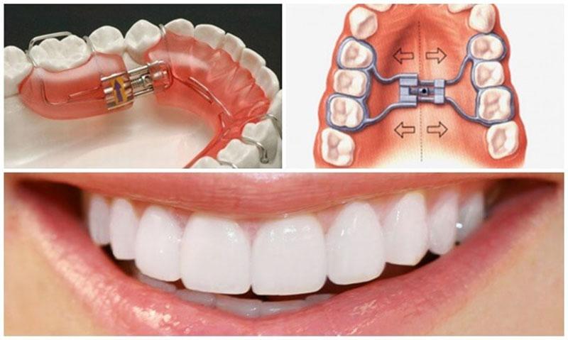 Nong hàm khi niềng răng để hàm răng cân đối, hài hòa