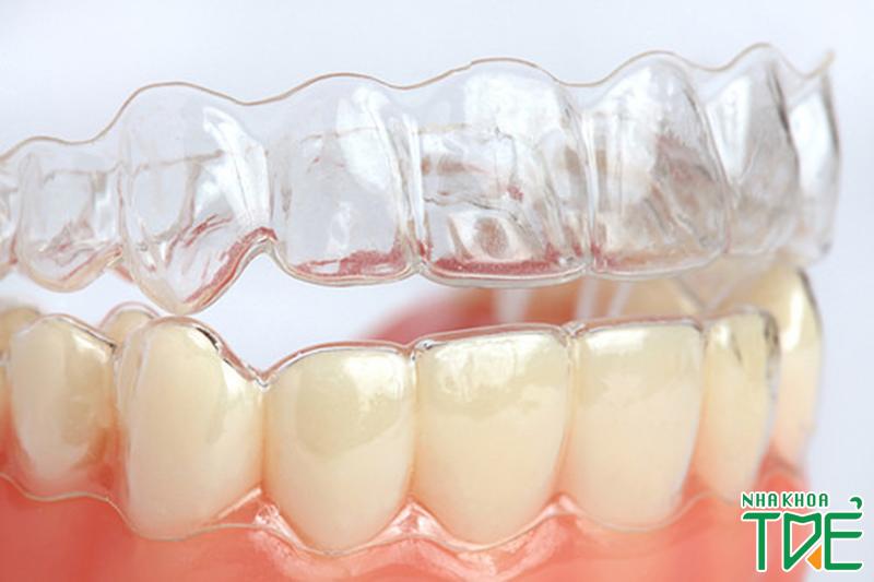 [HỎI – ĐÁP] Khi răng bị sâu có niềng răng được không?