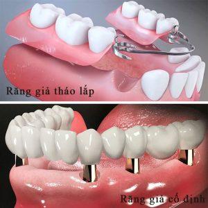 Nên làm răng giả tháo lắp hay cố định khi mất răng vĩnh viễn?