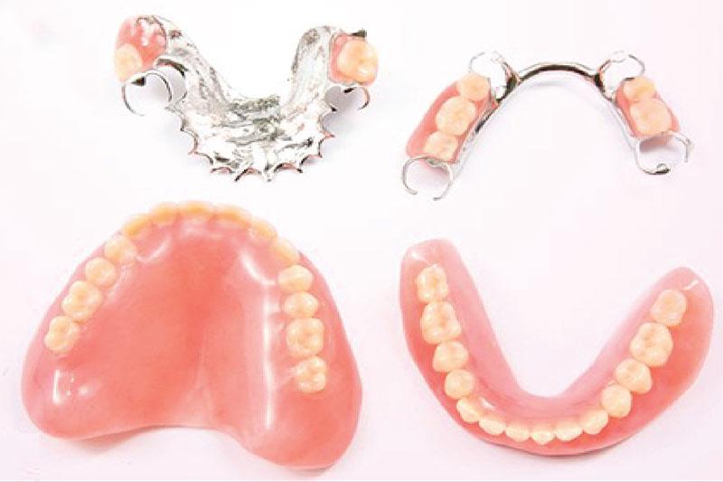 Răng giả tháo lắp bằng nhựa dẻo và kim loại