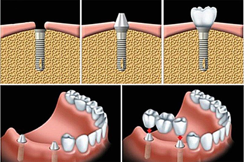Răng giả cố định là trồng răng Implant và cầu răng sứ