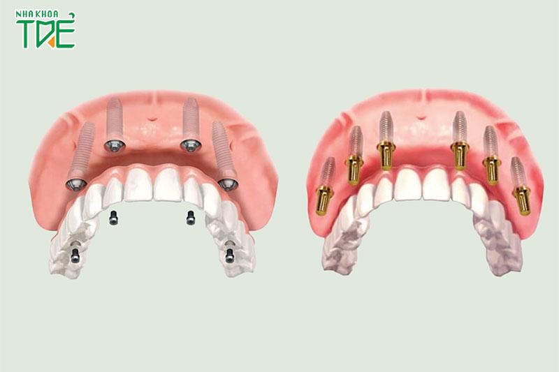 Implant trồng răng toàn hàm an toàn và bền đẹp lâu dài