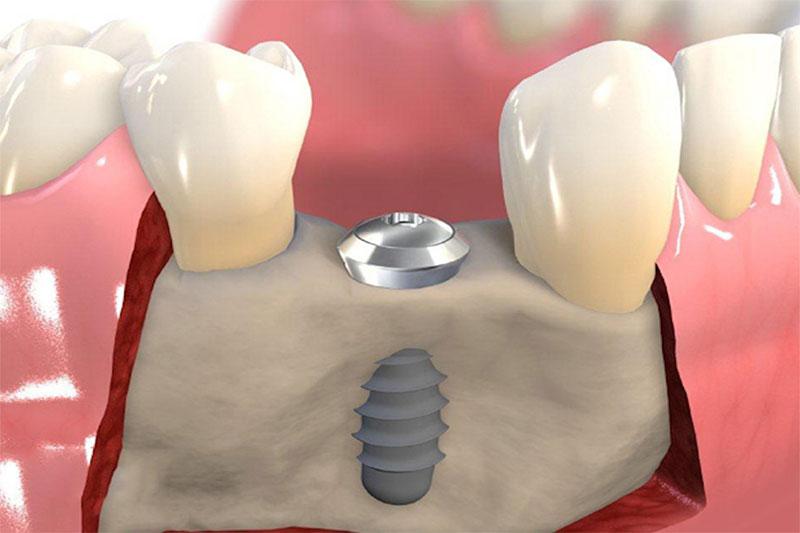 Tiểu phẫu Implant tác động đến xương hàm nên yêu cầu người bệnh phải có sức khỏe tốt