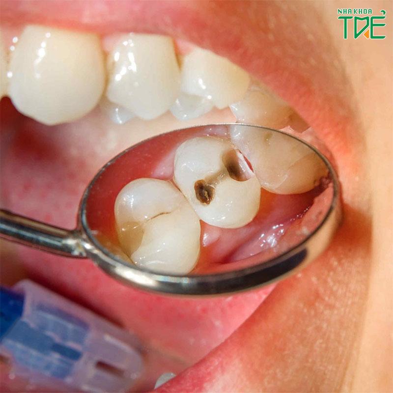 Răng hàm sữa có thay không?