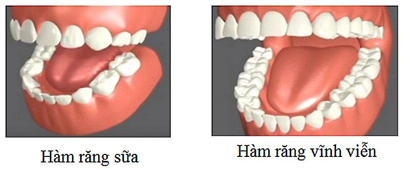 Hàm răng sữa và hàm răng vĩnh viễn có sự chênh lệch về số lượng răng hàm