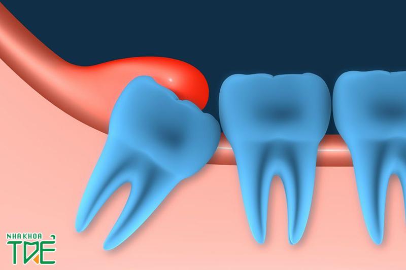 Răng khôn lợi trùm có nguy hiểm không? Cách điều trị