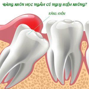 Răng khôn mọc ngầm có nguy hiểm không? có nên nhổ không?