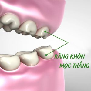 Có nên nhổ răng khôn mọc thẳng hay không?