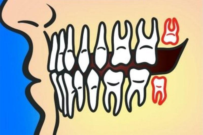 Trường hợp răng khôn mọc thẳng có thể phải nhổ răng hoặc không