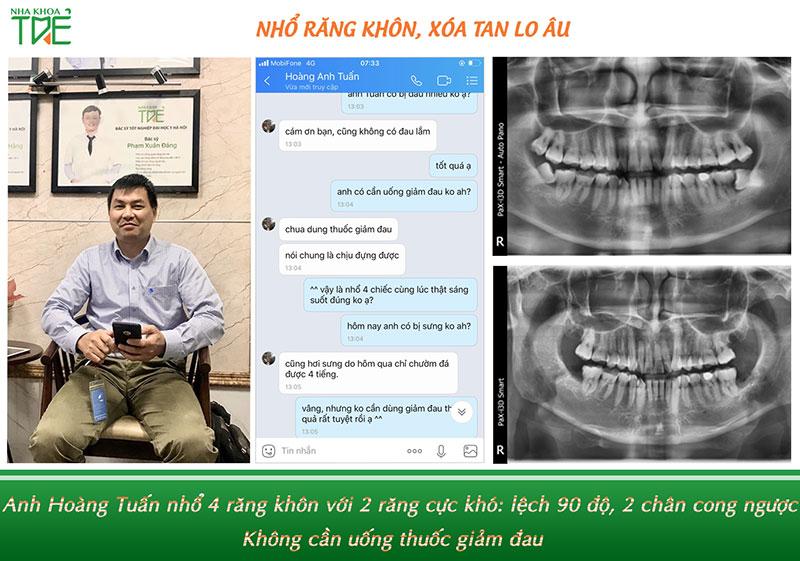 Anh Hoàng Tuấn nhổ 4 răng khôn cùng lúc tại Nha khoa Trẻ