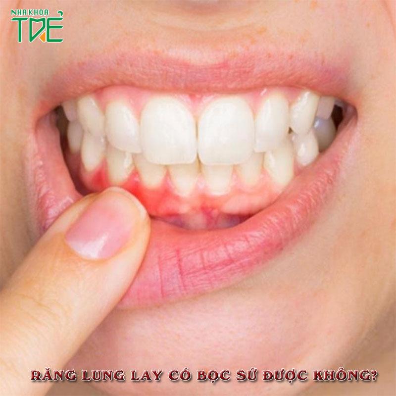 Răng lung lay có bọc sứ được không?