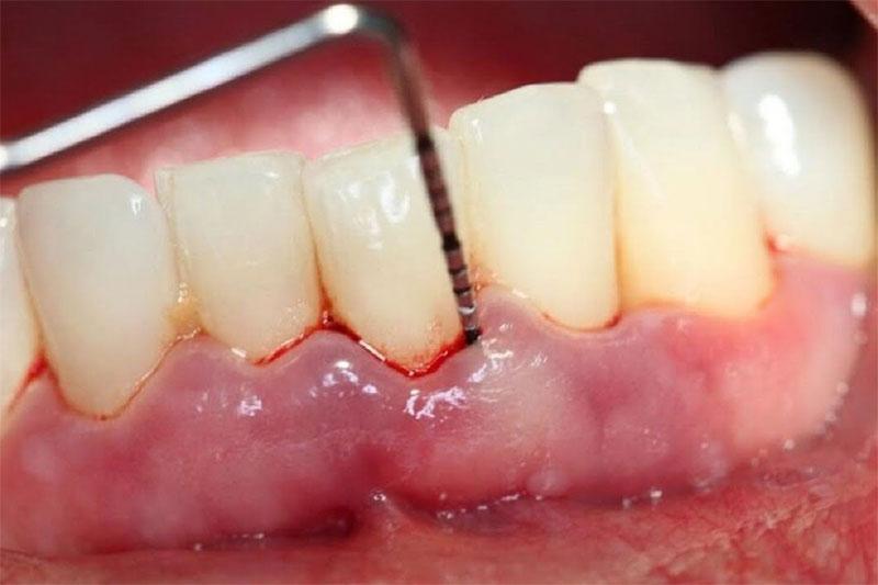 Viêm nha chu là một trong những nguyên nhân chủ yếu làm răng lung lay