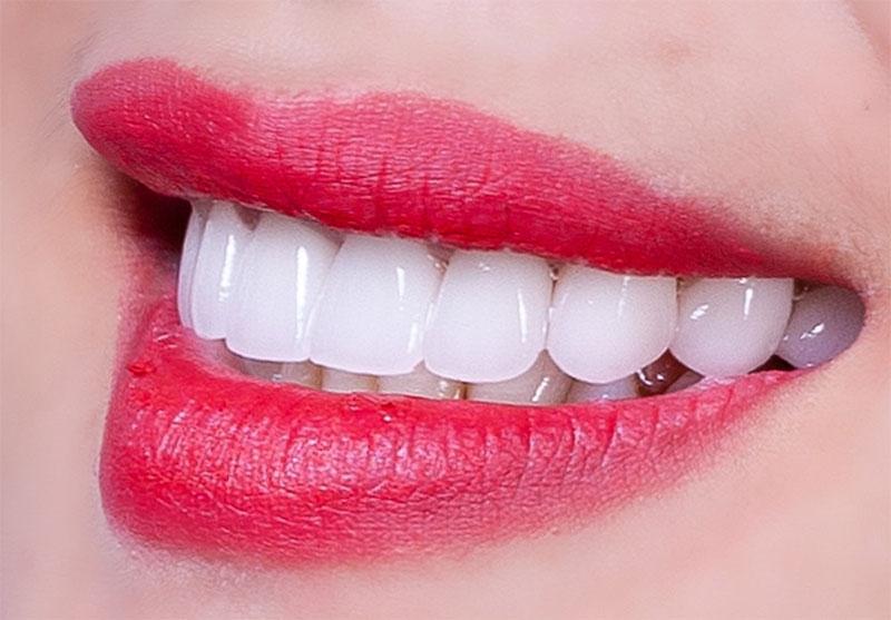 Bọc răng sứ là giải pháp tối ưu cho trường hợp răng sứ mẻ nhỏ