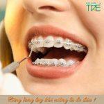 Răng lung lay khi niềng do đâu? Có ảnh hưởng gì không?