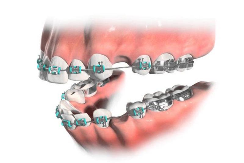 Răng lung lay nặng có thể phải nhổ răng để tiếp tục niềng các răng còn lại trên cung hàm