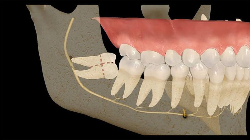 Răng mọc ngầm chèn lên dây thần kinh cần được điều trị sớm tránh biến chứng
