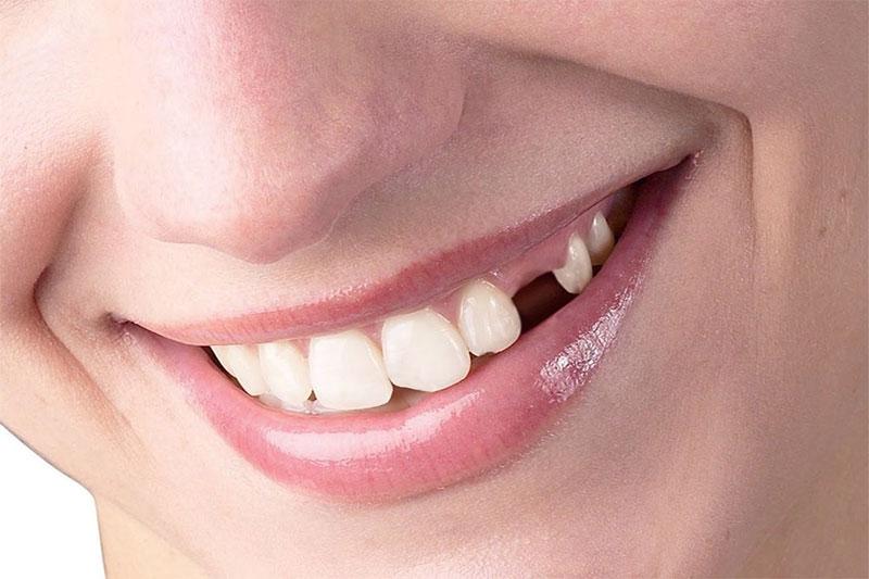Răng nanh mọc ngầm tạo khoảng chống trên cung hàm gây mất thẩm mỹ