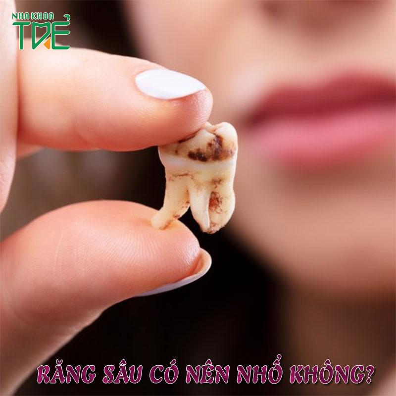 Răng sâu có nên nhổ không?