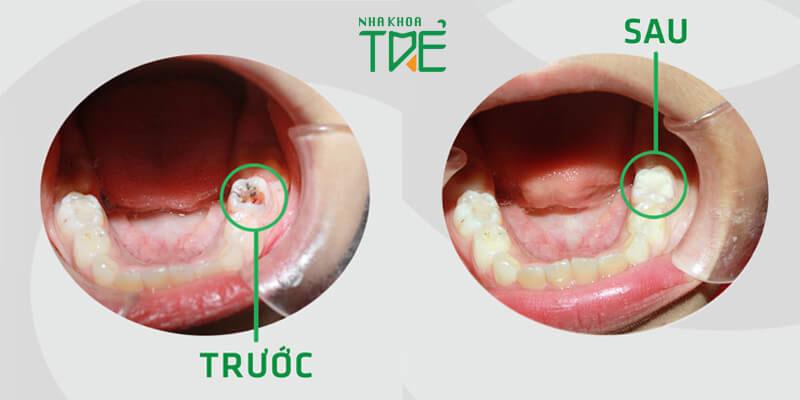 Điều trị răng sâu bằng phương pháp hàn trám tại Nha khoa