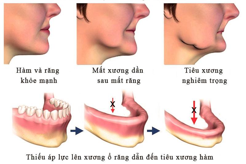 Mất răng nếu không trồng lại sẽ dẫn đến tình trạng tiêu xương hàm