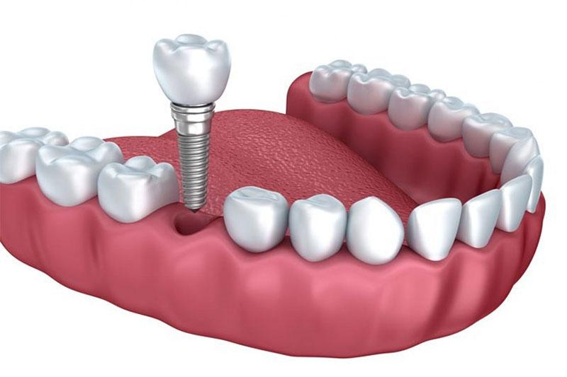 Cấy ghép Implant phục hình răng đã mất hiệu quả