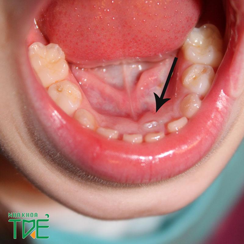 Răng sữa không rụng đã mọc răng vĩnh viễn thì phải làm sao?